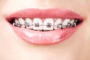 tratamiento de ortodoncia Guayaquil